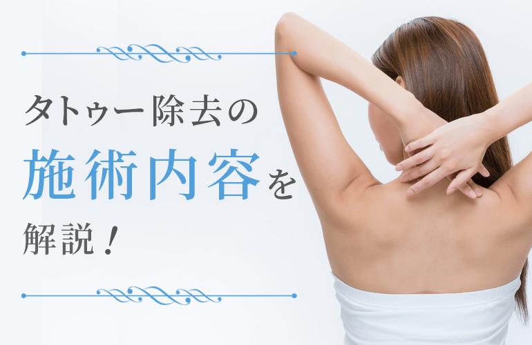 タトゥー除去の施術内容について解説