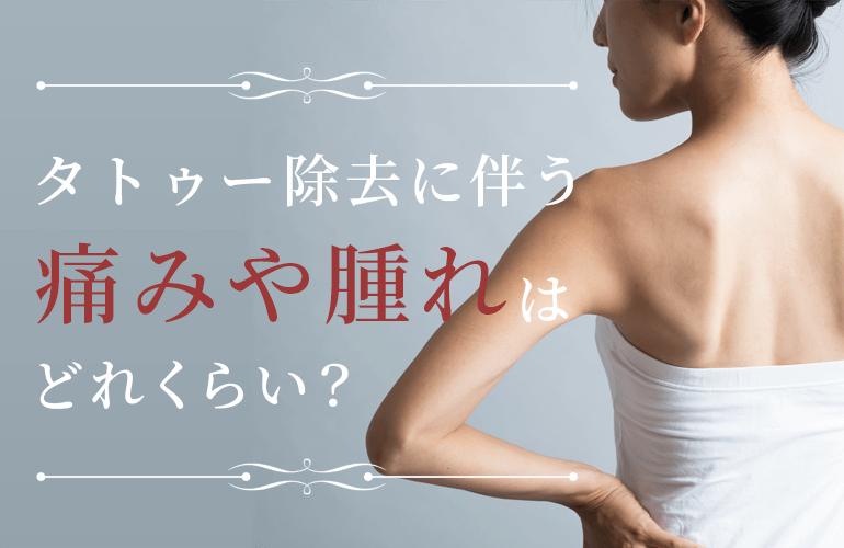 タトゥー除去に伴う痛みや腫れはどれくらい?