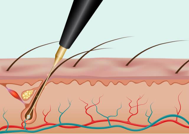 針脱毛のイメージ図