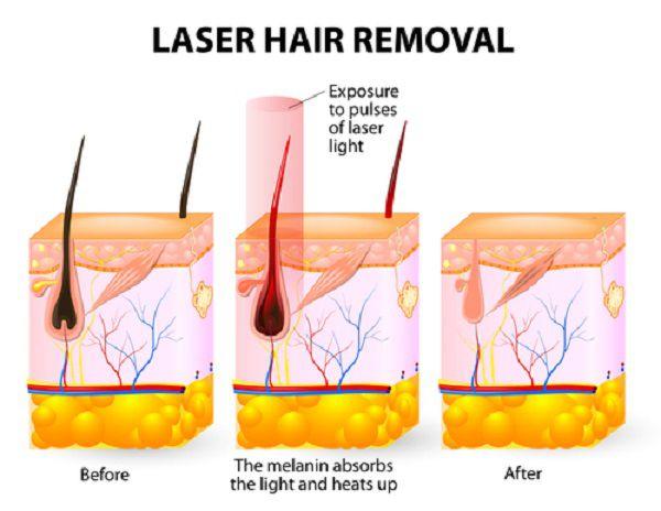 レーザー脱毛のイメージ図
