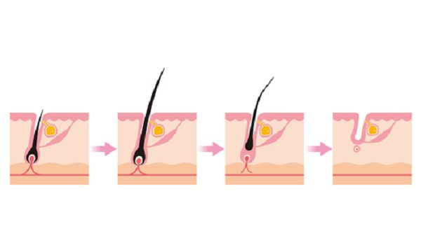 毛周期のイメージ図